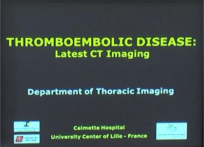 Thromboembolic Disease: Latest CT Imaging
