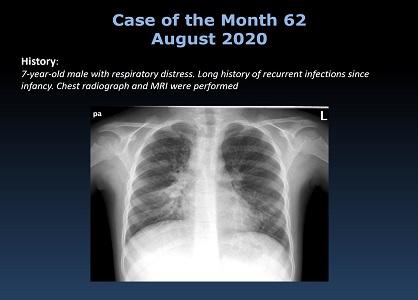 Case 62